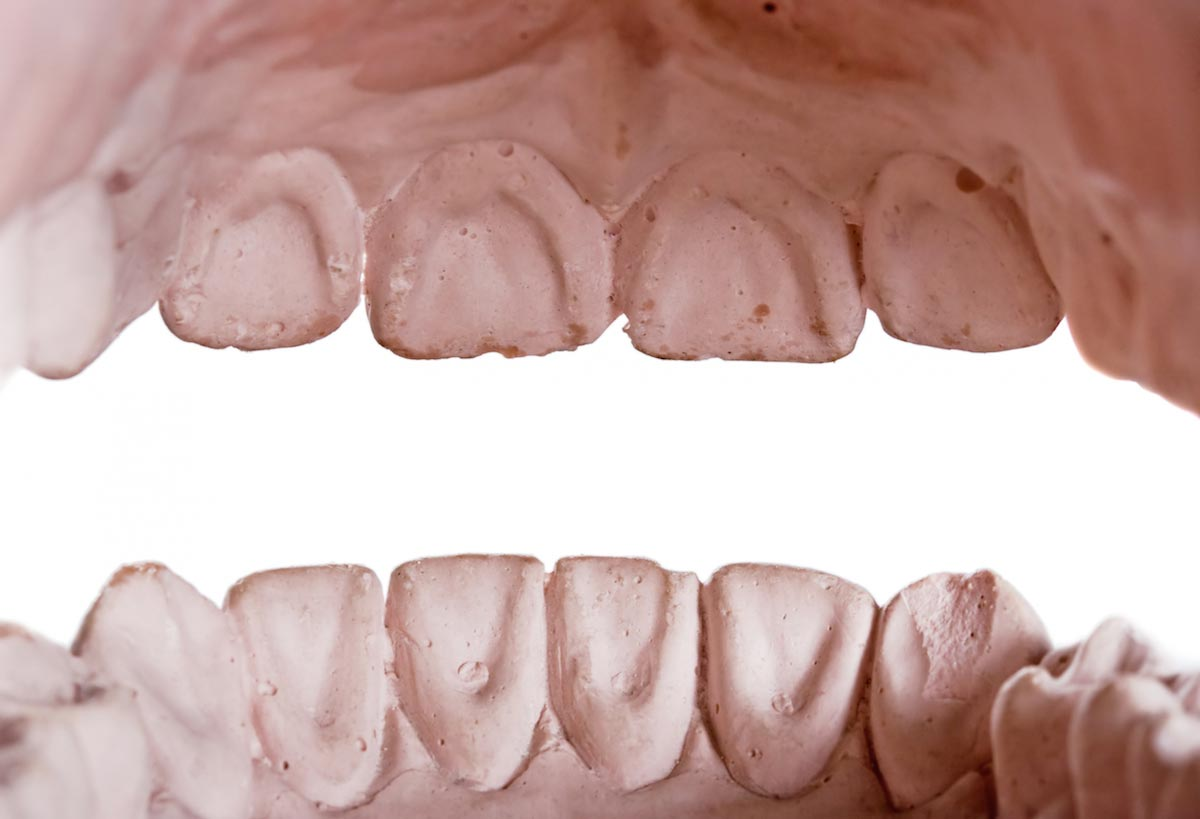 Revolutionary tooth decay treatment reverses tooth damage ...